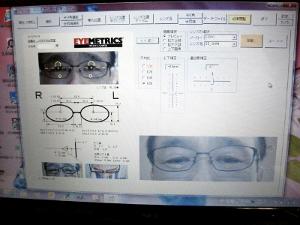 eyemec-top3
