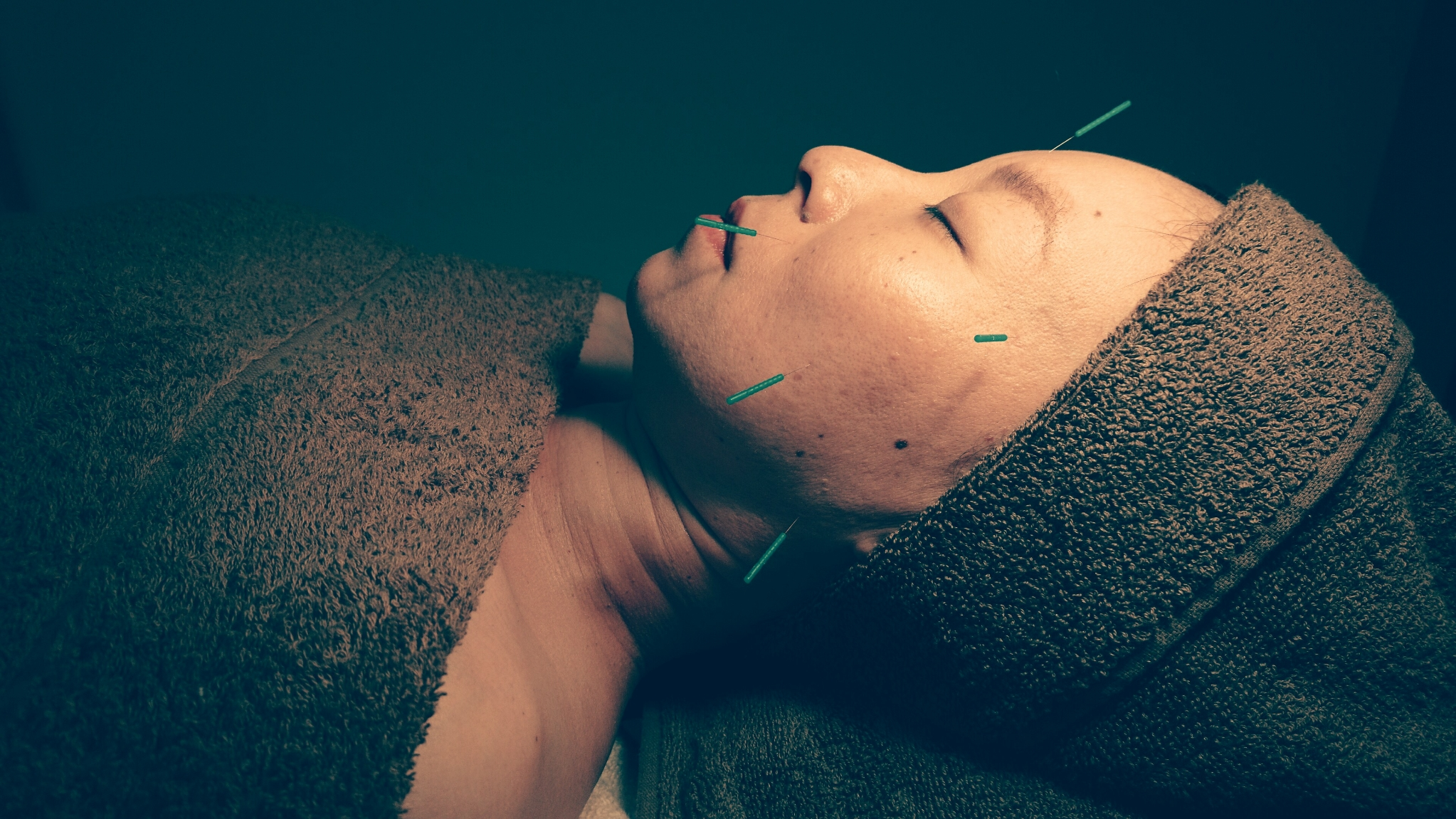 花の木治療院 美容鍼